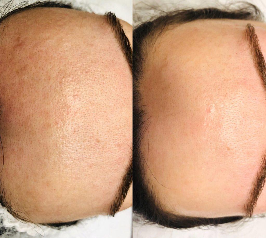 Skóra głowy - efekt po zabiegu